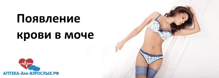Девушка в голубом белье и текст появление крови в моче
