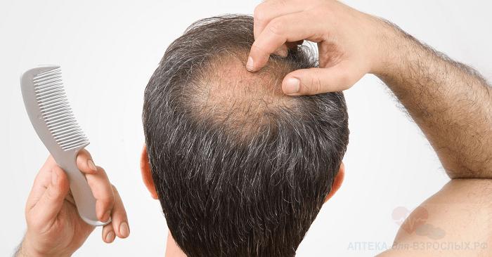 Облысение головы у мужчины