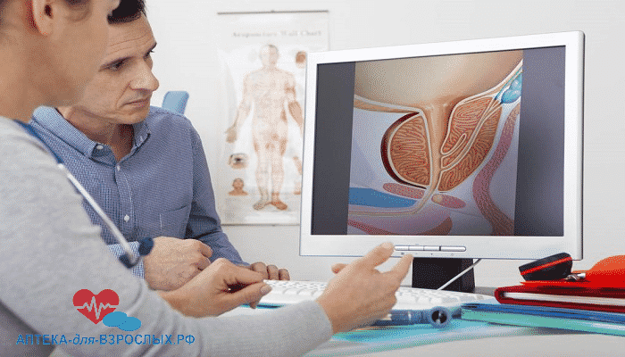 Девушка-врач показывает мужчине признаки простатита